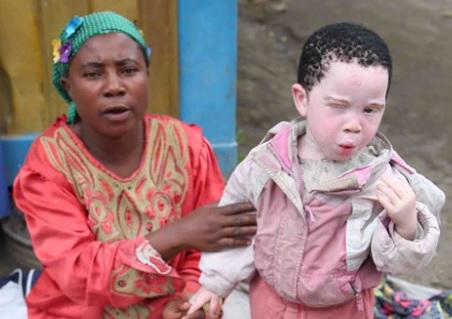 International Albinism Awareness Day 2017